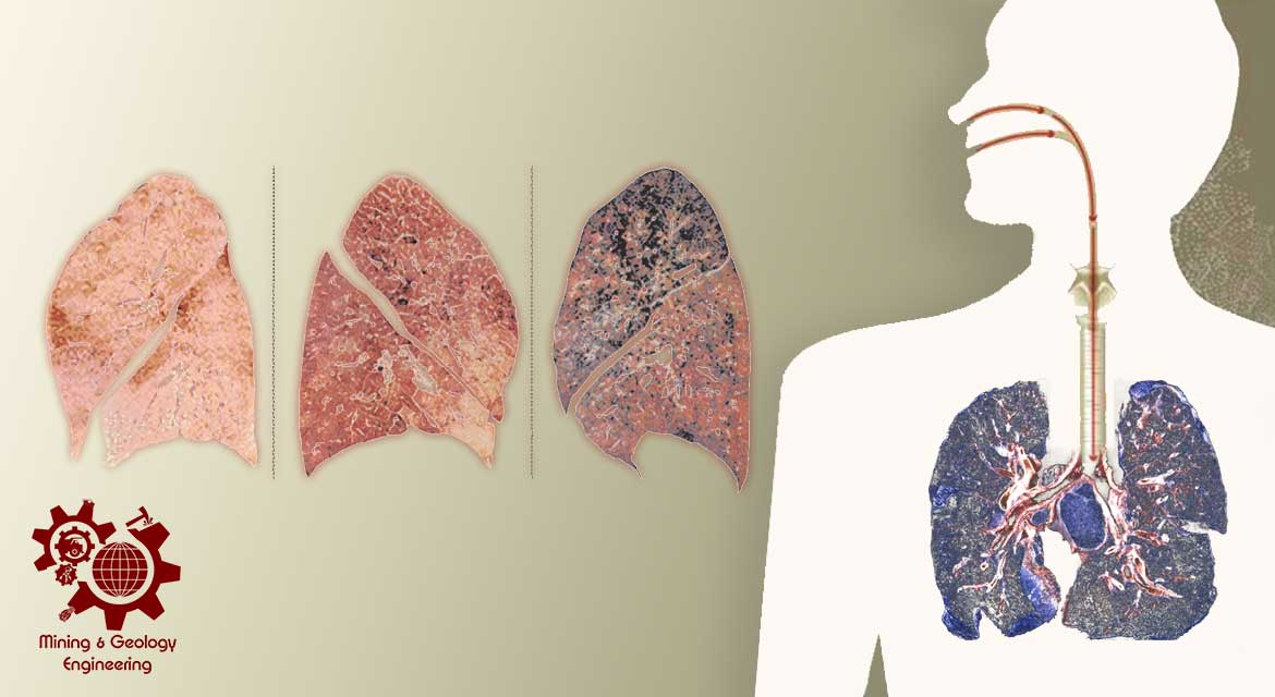 Diseases-caused-by-dust-from-minerals,-rocks-and-minerals